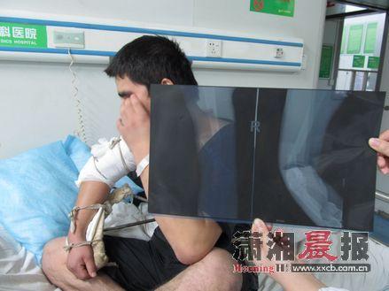 小任和同事扳手腕比输赢导致右手臂骨折。图/记者陈斌