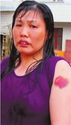 陆群在微博中提到,长沙县公安局民警粗暴执法,毒打农民工。被殴农民工指着受伤的手臂。