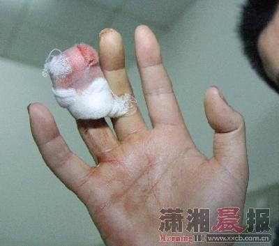 罗吉的右手无名指环指被乘客咬骨折。图/记者范思鼎