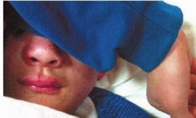 当记者在医院见到小枫时,他的鼻梁骨骨折了,鼻子和嘴唇都肿了起来,还有轻微的脑震荡。记者 王�鹰 摄