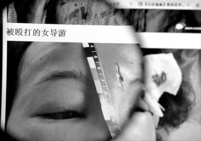 去年8月,在安徽黄山,一游客殴打女导游也曾引发社会关注。   新华社图片