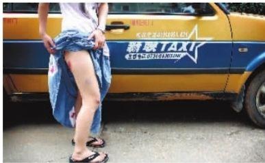 """被""""黑的""""拖行百米的王丽(化名)整个右腿全是伤。 实习生 骆毅 摄"""