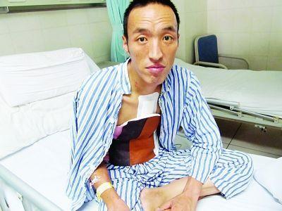 马明海手术后恢复了正常,原来紫黑的皮肤也变白了。张凌发摄