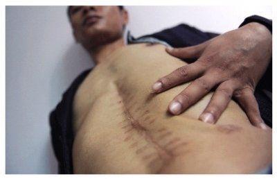 """9月24日,湖南岳阳,刘勇手术后""""少了一个肾脏"""",腹部留下了长长的伤疤。"""