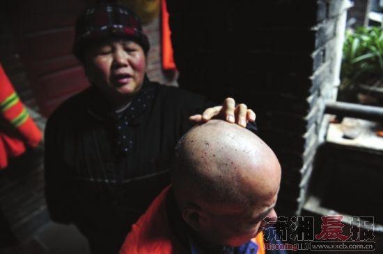 1月3日,长沙市迎宾路附近,老侯的头发不见了,头上还留有小伤口。图/记者辜鹏博