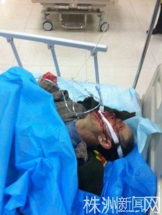 """被撞成重伤后,送进医院抢救的孔健罗(图片来自微博用户""""正直的漠漠"""")"""