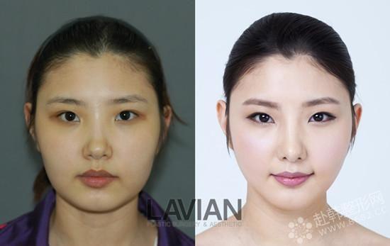 在整形技术领先世界的韩国,就最擅长制造后天美女,并且韩国人以清纯甜美的形象为美的标准,更符合你想变身清纯妹子的理念,像韩国的拉菲安整形外科就是一家不错的综合性整形医院,以面部轮廓整形、鼻部整形、眼部整形、胸部整形为中心,致力于打造你心目中的完美形象而努力。   变身清纯美女脸型是关键   想要让自己看起来更柔美可人,脸型必须呈现柔美协和的线条美感,拉菲安整形外科不追求过分夸张的锥子脸,主张自然健康协调的美,在进行面部 整形前,会先用医院的高端仪器3D CT装备来为顾客进行精确的测量,在掌握顾客的面部