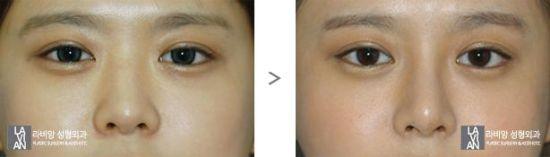 除了眼睛以外,鼻子也是必不可少的,一个普通美女你也许可以没有高挺的美鼻,但是一个绝世美女就绝对不能没有完美的俏鼻了。鼻子是用来提升整体气质的关键,拉菲安整形外科指出理想的鼻子要与整体面部达到一个和谐的境界,无论怎么看都完美。拉菲安整形外科在做鼻部整形时,综合正面、侧面、45度角来综合设计鼻子,让鼻子为你的形象加分!