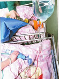 永州联体婴儿被分离