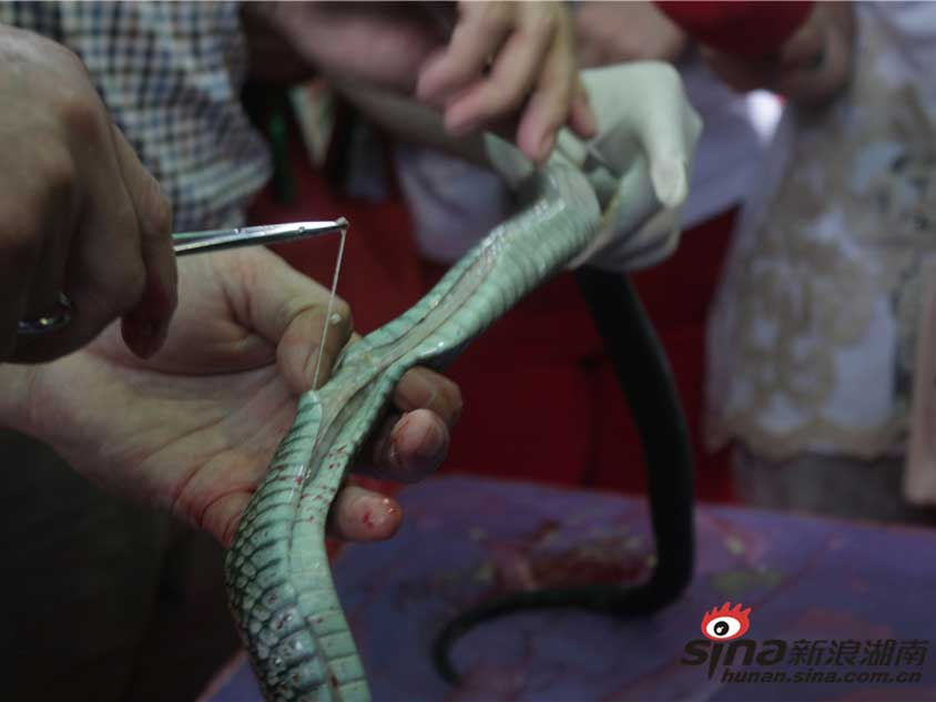 蛇王解剖白虫蠕动